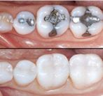tooth white filling